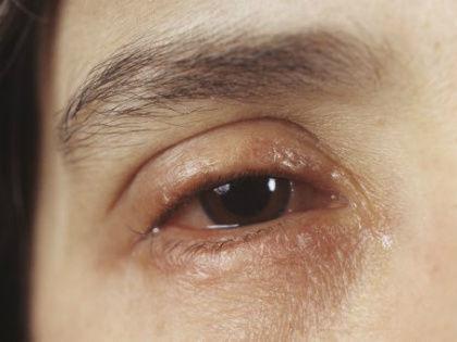 Отечность мягких тканей всего тела называется анасарка и является признаком тяжелой болезни // Global Look Press