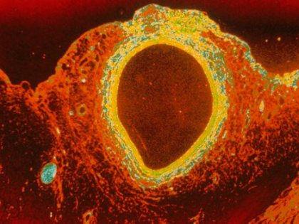 Растворимый стент для артерий сердца исчезнет, выполнив свою работу // Global Look Press