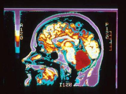Магниты вокруг головы могут помочь в лечении анорексии // Global Look Press