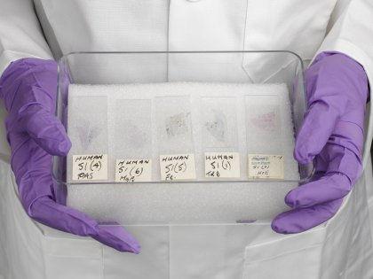 Запущенный рак легких теперь смогут лечить более эффективно // Global Look Press
