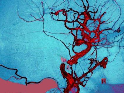 Проникновение крови в мозг может стать причиной рассеянного склероза // Global Look Press