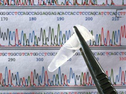 Генетические механизмы возникновения деменции и болезни Паркинсона выявлены // Global Look Press
