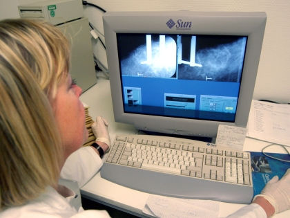 Тайна резистентности к лекарству от рака груди разгадана // Global Look Press