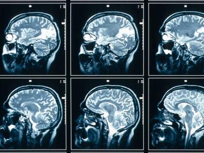 Риск алкоголизма и половой распущенности можно вычислить с помощью МРТ // Global Look Press