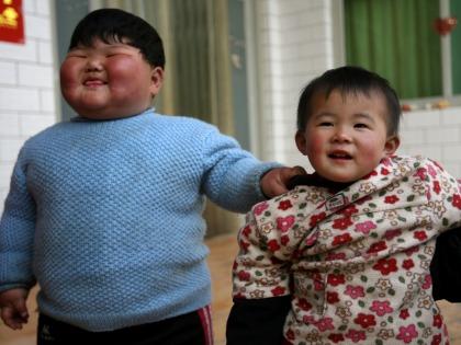 Детское ожирение грозит ранним пубертатом и сердечно-сосудистыми болезнями // Chinafotopress / Global Look Press