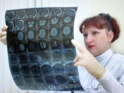 Названы 10 симптомов, по которым можно предположить наличие рака // Anna Altukhova / Global Look Press