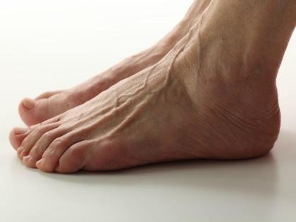 Первые признаки варикоза на ногах чаще всего путают с усталостью в конце дня // Global Look Press