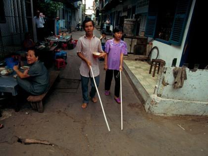 Число слепых в мире к 2050 году достигнет 115 млн человек // Pascal Deloche / GODONG / Global Look Press