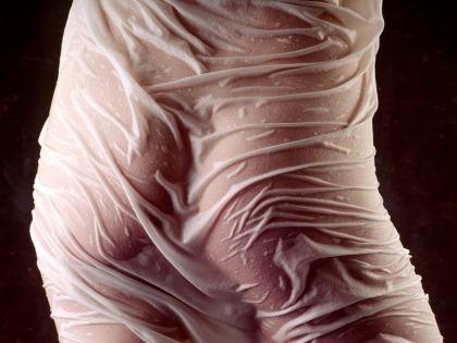 Большинство случаев тазовых болей у женщин  вызывается эндометриозом // Global Look Press