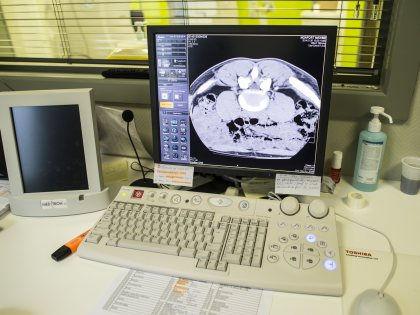 Мозговая активность жертв травматических поражений головного мозга после восстановления памяти изменяется // Global Look Press