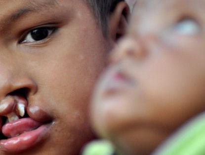 Причиной возникновения заячьей губы является повышенная активность одного из генов // Abhisek Saha / Global Look Press