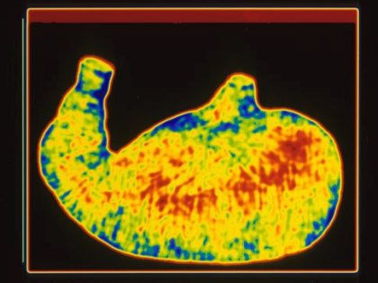 Технология выращивания органов за пределами тела поможет в лечении тяжелых болезней // Global Look Press
