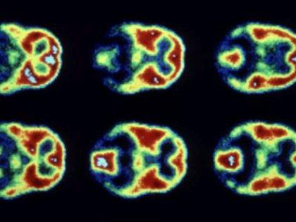Открытие структур двух белков поможет лечить рак за счет кислородного голодания опухолей // Global Look Press