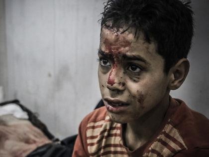 Мальчик, пострадавший во время боевых действий в одном из районов Дамаска // Global Look PRess