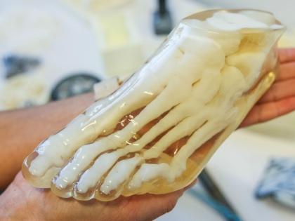 Протезирование является одним из самых бурно развивающихся направлений в медицинской 3D-печати // Global Look Press