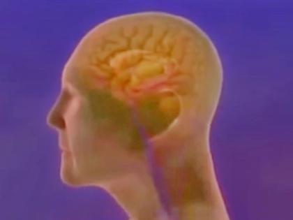 Никто не знает, почему развивается болезнь Альцгеймера // Стоп-кадр YouTube