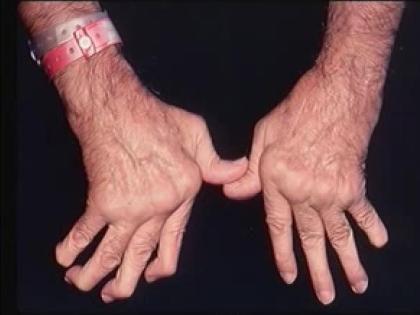 Анализ генных мутаций поможет подобрать самый эффективный способ лечения артрита // Youtube.com