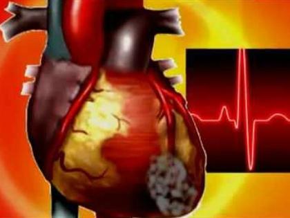 Врачи утверждают, что выросла в последние годы частота осложнений на сердце // Стоп-кадр YouTube