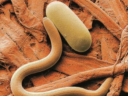 200 тысяч человек ежегодно умирают от паразитов // Shutterstock