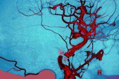 Проникновение крови в мозг может стать причиной рассеянного склероза
