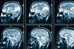 Риск алкоголизма и половой распущенности можно вычислить с помощью МРТ