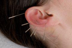 Акупунктура помогает жертвам фибромиалгии избавиться от болей