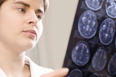 Ожирение увеличивает риск развития рака мозга на 51%