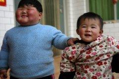 Детское ожирение грозит ранним пубертатом и сердечно-сосудистыми болезнями