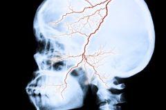 Исследование поможет найти новые лекарства против лакунарных инсультов