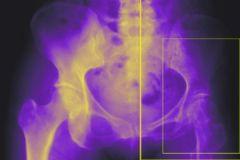 Гипонатриемия увеличивает  риск остеопороза и переломов в 12 раз