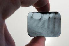 Ученые предложили укреплять зубы человека нанобриллиантами