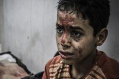 Мальчик, пострадавший во время боевых действий в одном из районов Дамаска