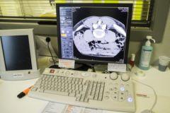 Травмы мозга будут лечить с помощью препарата от повышенного давления