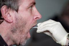 Анализы слюны и крови помогут быстро и надежно отыскать признаки рака шеи и головы