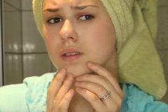 Шелушение может быть признаком какого-либо кожного заболевания, но может возникнуть и у совершенно здорового человека