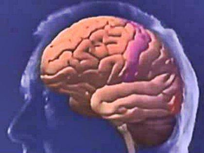После инсульта что-то нарушается в мозгу и человек без видимой причины начинает легко плакать или смеяться