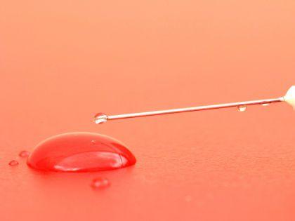 По степени выраженности гена можно судить о том, нужно ли вырезать опухоль