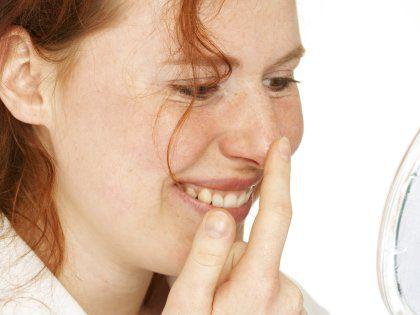 Топ-5 натуральных продуктов для ухода за кожей лица