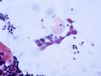 Опухоли будут лечить липосомами с тепловым наведением