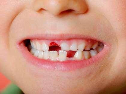 Стоматологи рассказали, какие проблемы со здоровьем они видят по состоянию зубов пациента