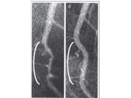 На фотографии справа артерия заметно чище и толше.