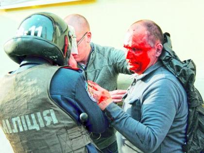 Пострадавший в массовой драке в Харькове