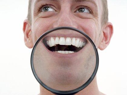 L-аргинин останавливает процесс образования зубного налета