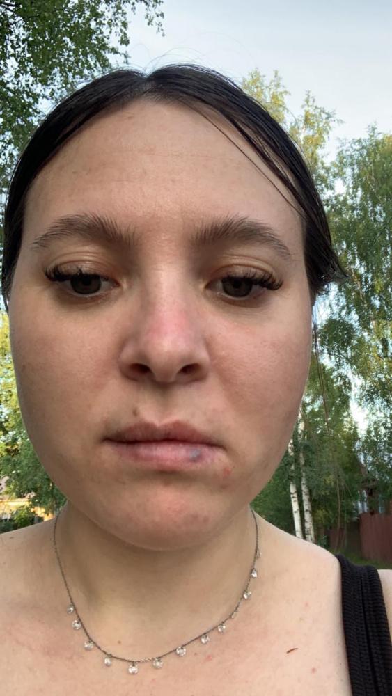Рыдала от страха: телеведущей НТВ столичные врачи изуродовали губы