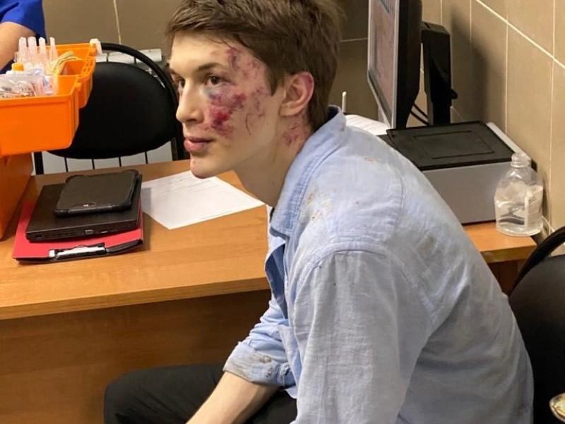 Егор Жуков после избиения // Фото: соцсети