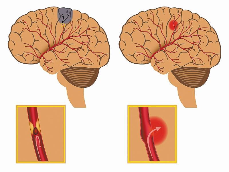 При инсульте может произойти разрыв сосуда, кровь попадает под оболочки мозга или в желудочки, человек может умереть или впасть в кому...